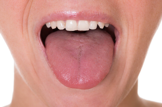 tongue fat