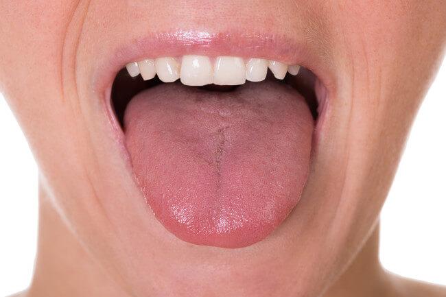 tongue fat